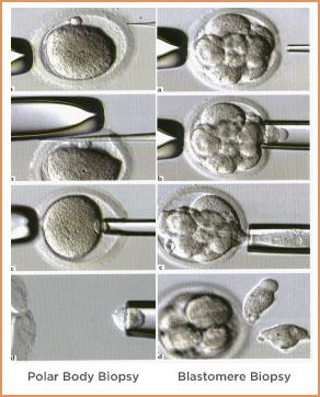 PGD Biopsy Illustration